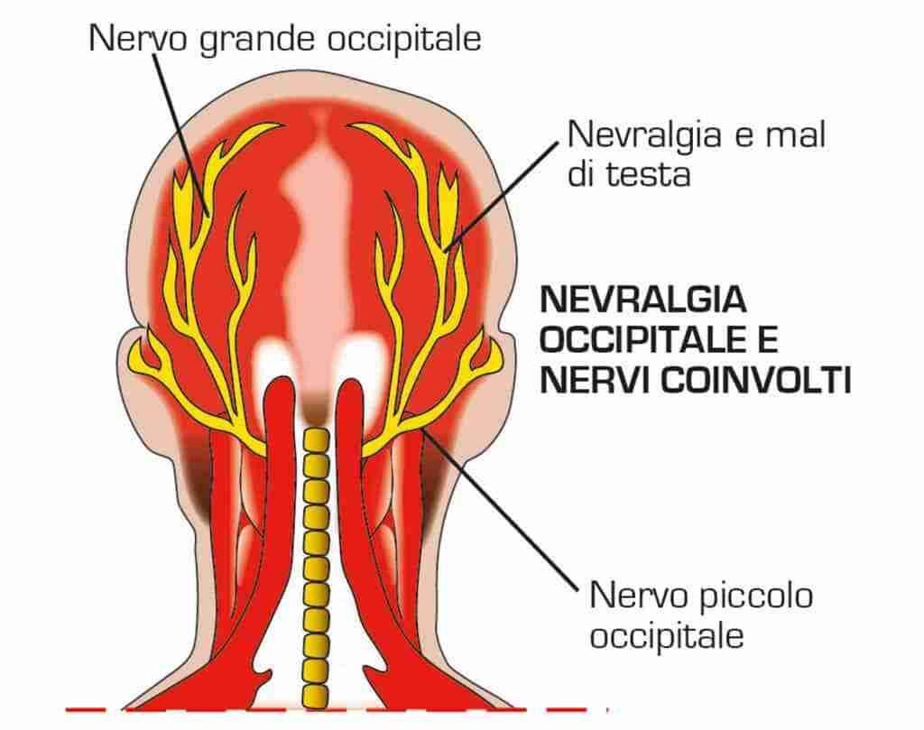 Nevralgia occipitale medicina del dolore for Mal di testa da cervicale quanto puo durare