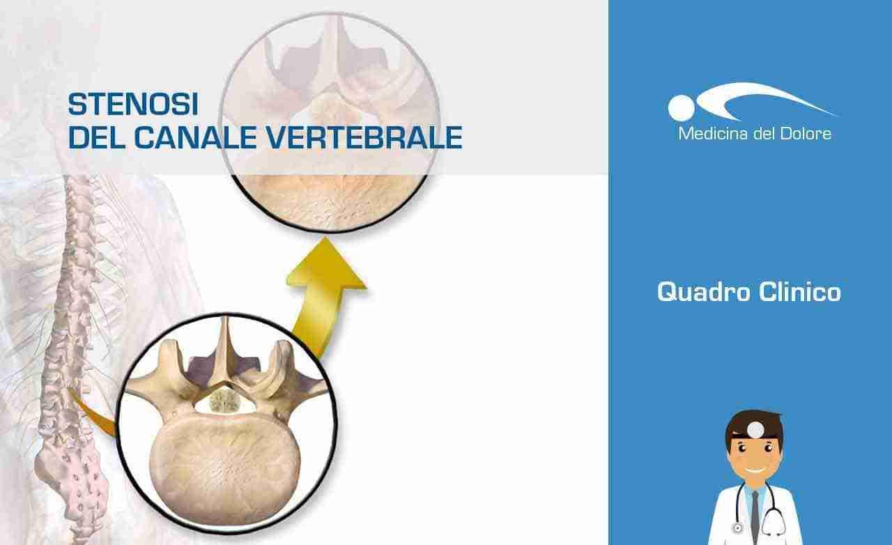 Stenosi canale vertebrale